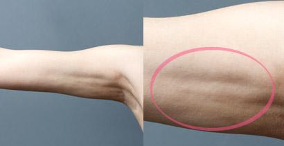 脂肪吸引 失敗写真 二の腕