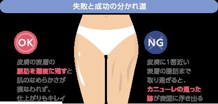 失敗と成功の分かれ道 OK:皮膚の表層の脂肪を適度に残すと肌のなめらかさが損なわれず、仕上がりもキレイ NG:皮膚に1番近い表層の脂肪まで取り過ぎると、カニューレの通った跡が表面に浮き出る