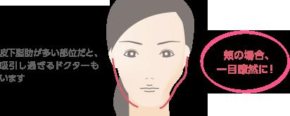 皮下脂肪が多い部位だと、吸引し過ぎるドクターもいます 頬の場合、一目瞭然に!