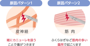 原因パターン1:雑にカニューレを扱うことで傷がつきます 原因パターン2:ふくらはぎなど筋肉の多い箇所で起こります