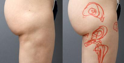 脂肪吸引 失敗写真 太もも