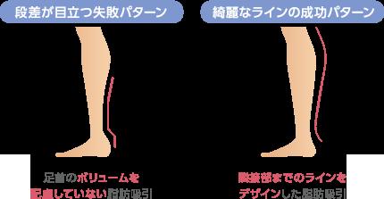 段差が目立つ失敗パターン:足首のボリュームを配慮していない脂肪吸引 綺麗なラインの成功パターン:隣接部までのラインをデザインした脂肪吸引