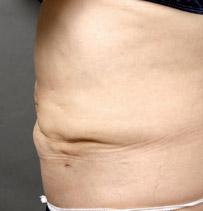 脂肪吸引 失敗写真 腹部