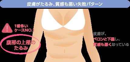 皮膚がたるみ、質感も悪い失敗パターン 1番多いケースNO.1:腹部の上部のたるみ 皮膚が、ペロンと下垂し、質感も悪くなっている