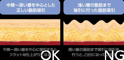 中間〜深い層を中心とした正しい脂肪吸引 中間~深い層を中心に吸引するとフラットな仕上がりになる→OK 浅い層の脂肪まで強引に行った脂肪吸引 浅い層の脂肪まで強引に吸引を行うと、凸凹になってしまう→NG
