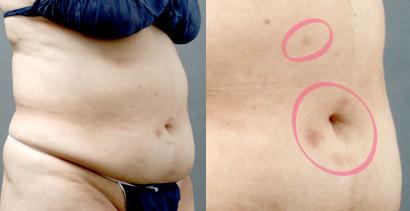 脂肪吸引 失敗写真 色素沈着