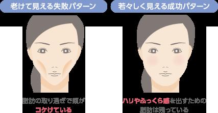 老けて見える失敗パターン:脂肪の取り過ぎで頬がコケけている 若々しく見える成功パターン:ハリやふっくら感を出すための脂肪は残っている