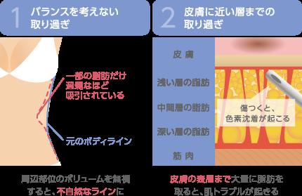1.バランスを考えない取り過ぎ 周辺部位のボリュームを無視すると、不自然なラインに 2.皮膚に近い層までの取り過ぎ 皮膚の表層まで大量に脂肪を取ると、肌トラブルが起きる