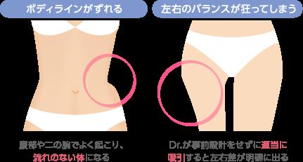 ボディラインがずれる:腹部や二の腕でよく起こり、流れのない体になる 左右のバランスが狂ってしまう:Dr.が事前設計をせずに適当に吸引すると左右差が明確に出る