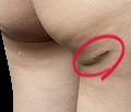 吸引口の傷が目立つ