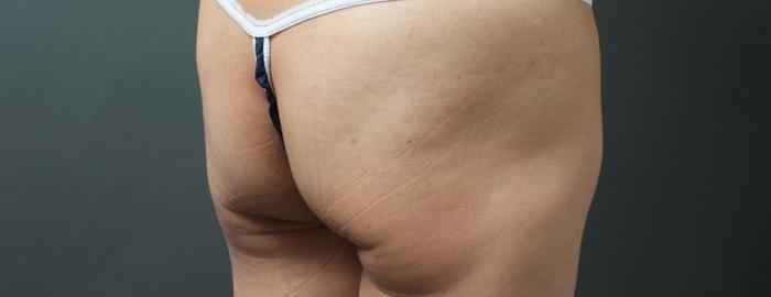 「お尻 垂れる」の画像検索結果