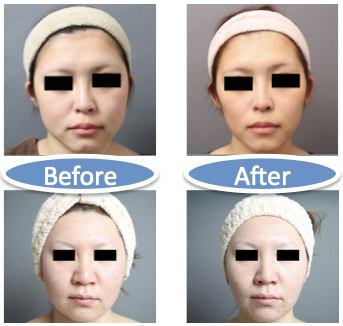 顔の脂肪吸引の症例画像