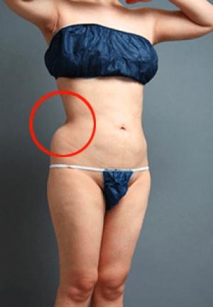 脂肪吸引の失敗ぼこぼこ