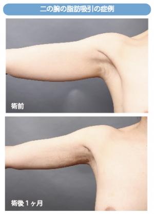 脂肪吸引 二の腕 硬縮