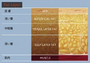脂肪吸引 失敗 原因