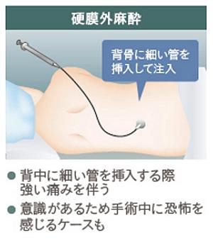 硬膜外麻酔