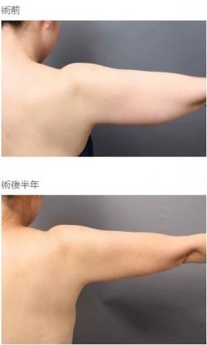 二の腕、脂肪吸引、細い