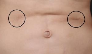脂肪吸引 お腹 失敗画像