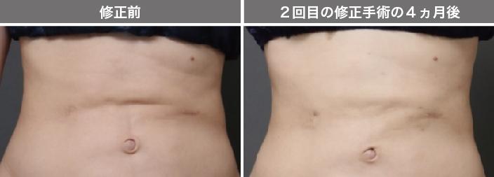 脂肪吸引 失敗修正 画像
