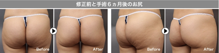 脂肪吸引 修正 実例