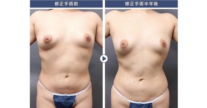 脂肪吸引 失敗 修正