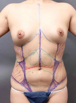 脂肪吸引 修正 デザイン