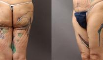 太股の脂肪吸引手術でたるみができる!? 失敗の修正方法をご紹介 イメージ画像