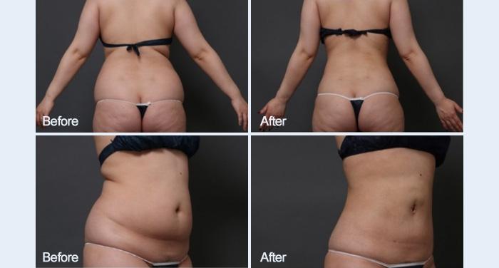 脂肪吸引 お腹 画像