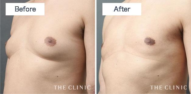 女性化乳房 症例 画像