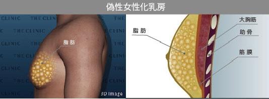女性化乳房 偽性 脂肪
