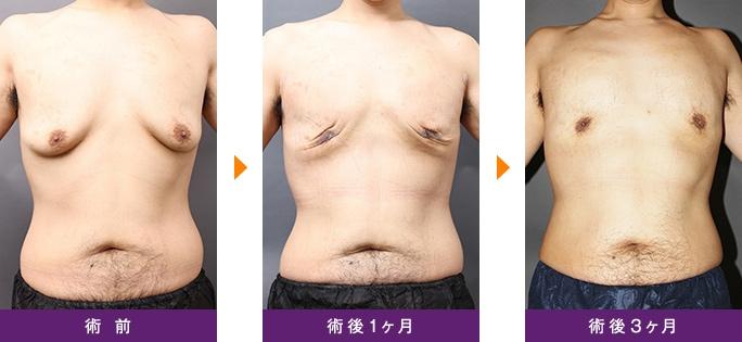 女性化乳房 サーミタイト 引き締め