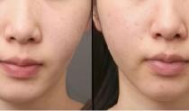 頬の脂肪吸引の失敗修正を公開! ビフォーアフター画像あり イメージ画像