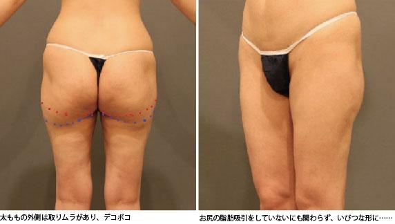 太ももの脂肪吸引の失敗写真