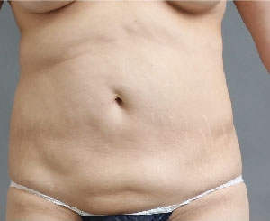 お腹の脂肪吸引の失敗例