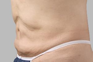 お腹の脂肪吸引たるみ