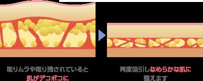 取りムラや取り残されていると肌がデコボコに 再度吸引しなめらかな肌に整えます